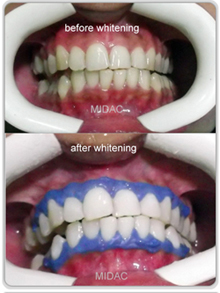 Laser Teeth Whitening Treatment Midac