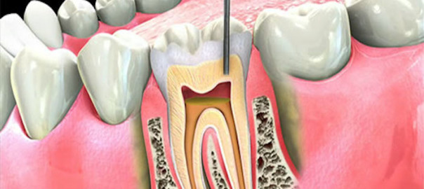 benefits-of-root-canal-treatment-over-tooth-extraction-1