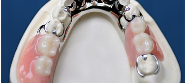removable-prosthodontics11