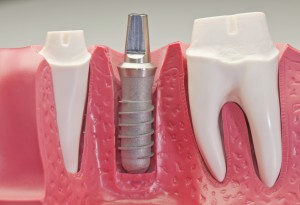 dental-implants-dentist-anchorage-ak-300x205
